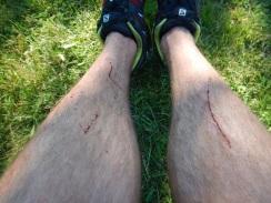 Legs were attacked